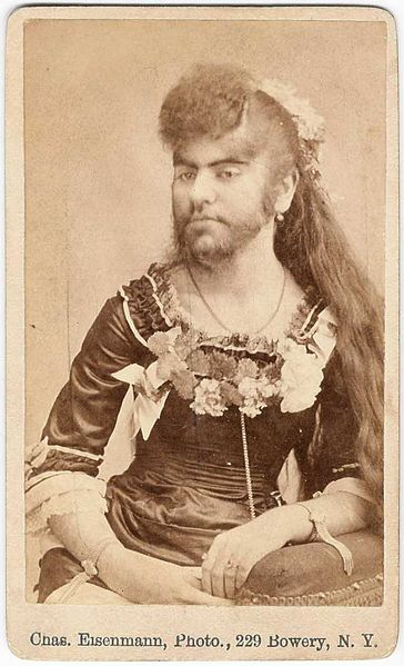 "The Bearded Lady appeared in many circus shows in the 1800s. Today, excess body/facial hair is associated with polycystic ovarian syndrome. PCOS also known as Stein-Leventhal Syndrome was ""discovered"" or first described by 2 gynecologist named Irving F. Stein, Sr. and Michael L. Leventhal in 1935."